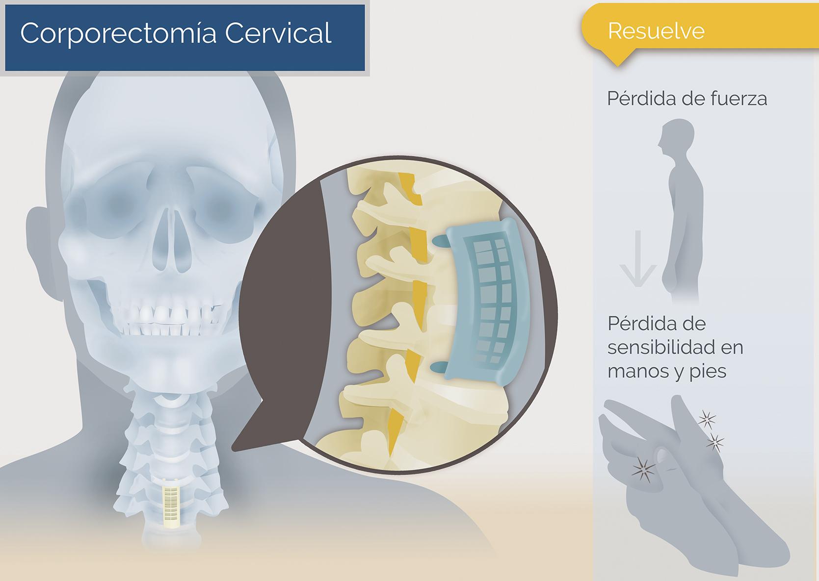 corporectomia cervical tratamiento
