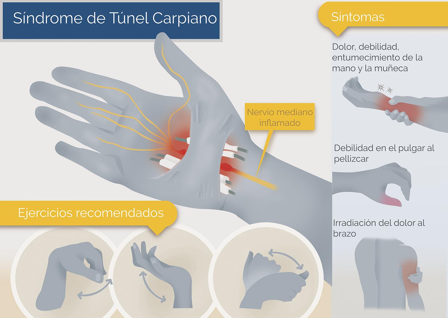 sindrome tunel carpiano
