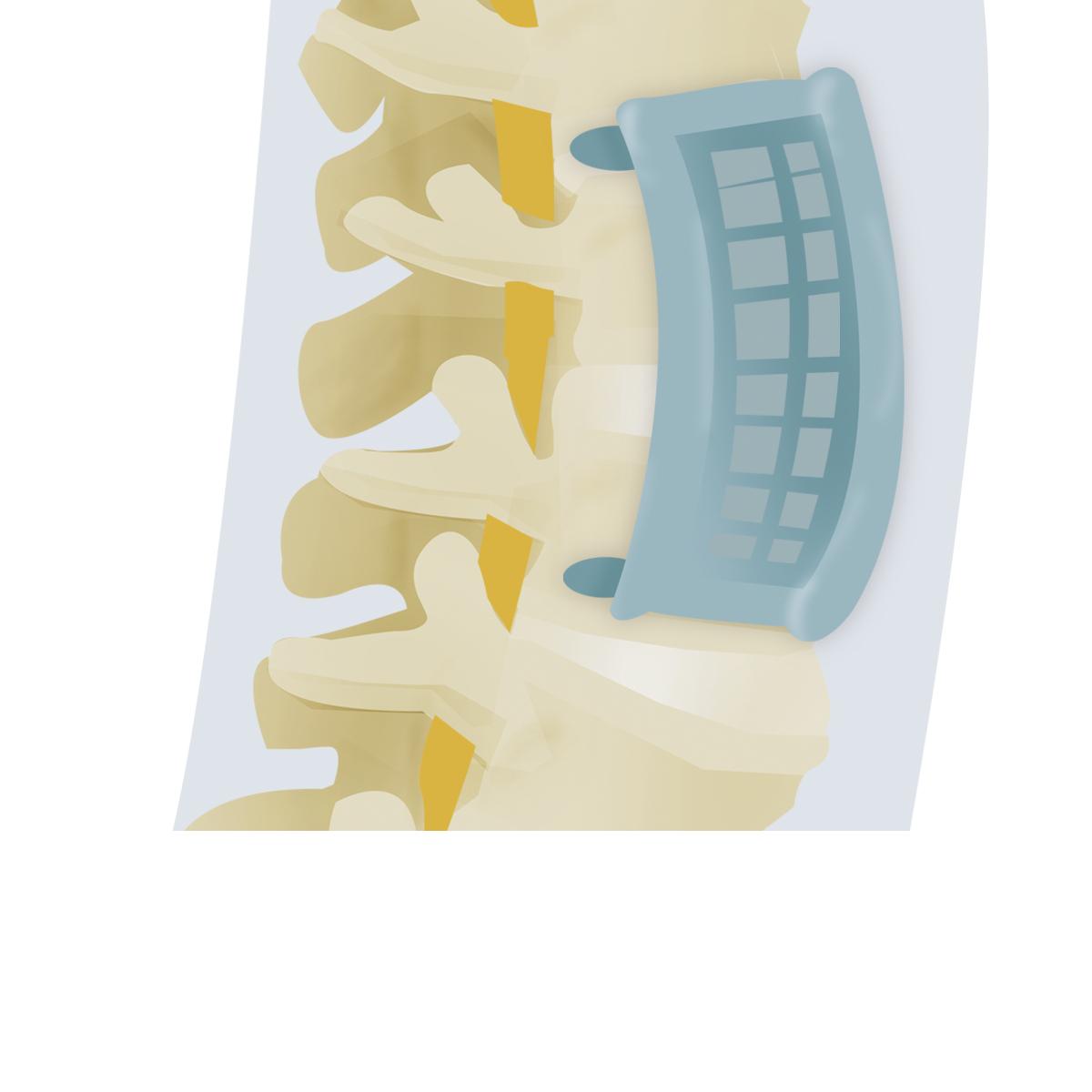 corporectomia cervical anterior