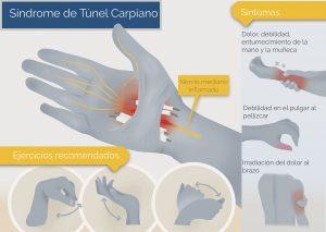 El síndrome del túnel carpiano provoca dolor, debilidad y entumecimiento de la mano y la muñeca