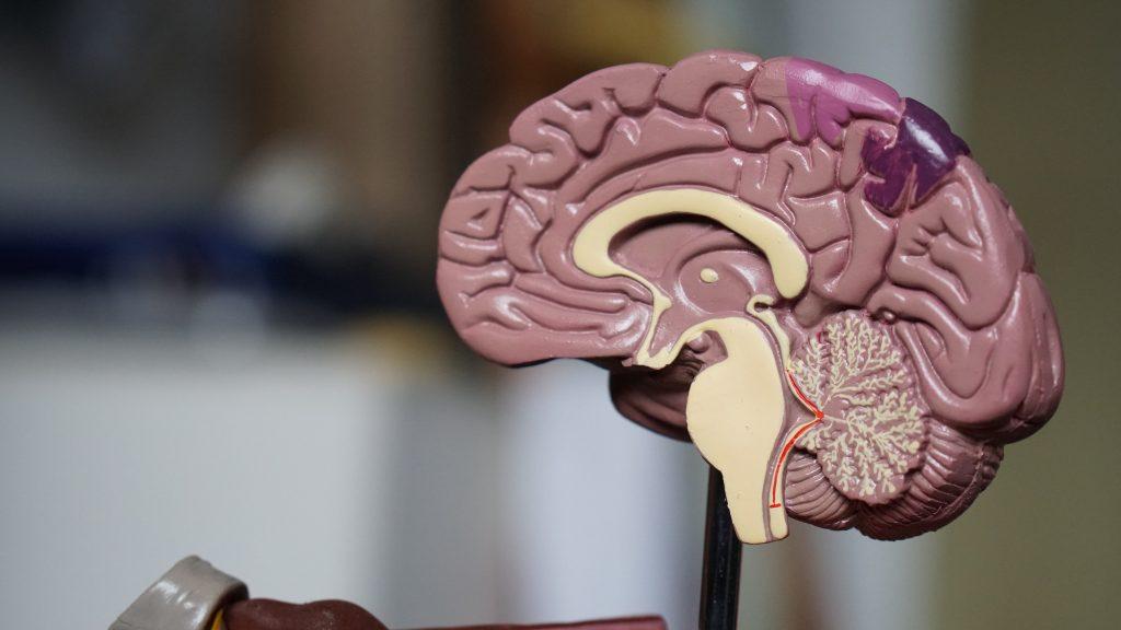 Tumores cerebrales benignos: qué son y cómo se tratan