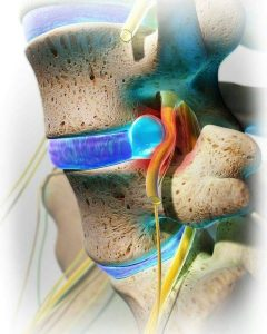 Qué es una hernia discal y cuáles son sus síntomas