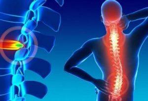 El primer tratamiento para una hernia discal es un período corto de reposo con analgésicos, seguido o acompañado de fisioterapia