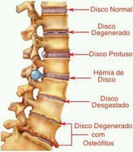 Lesiones de los discos intervertebrales