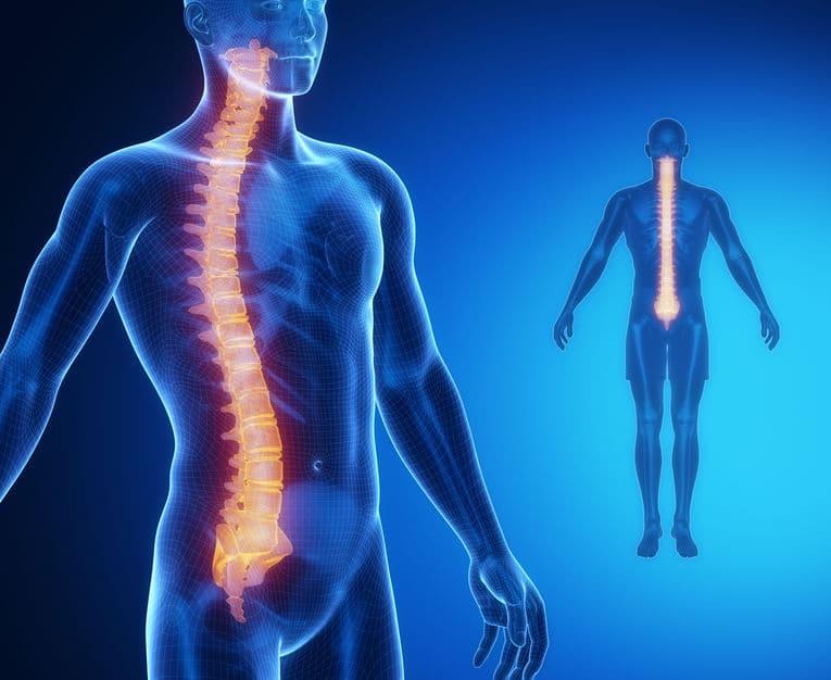 Escoliosis: una patología que no es una simple curvatura