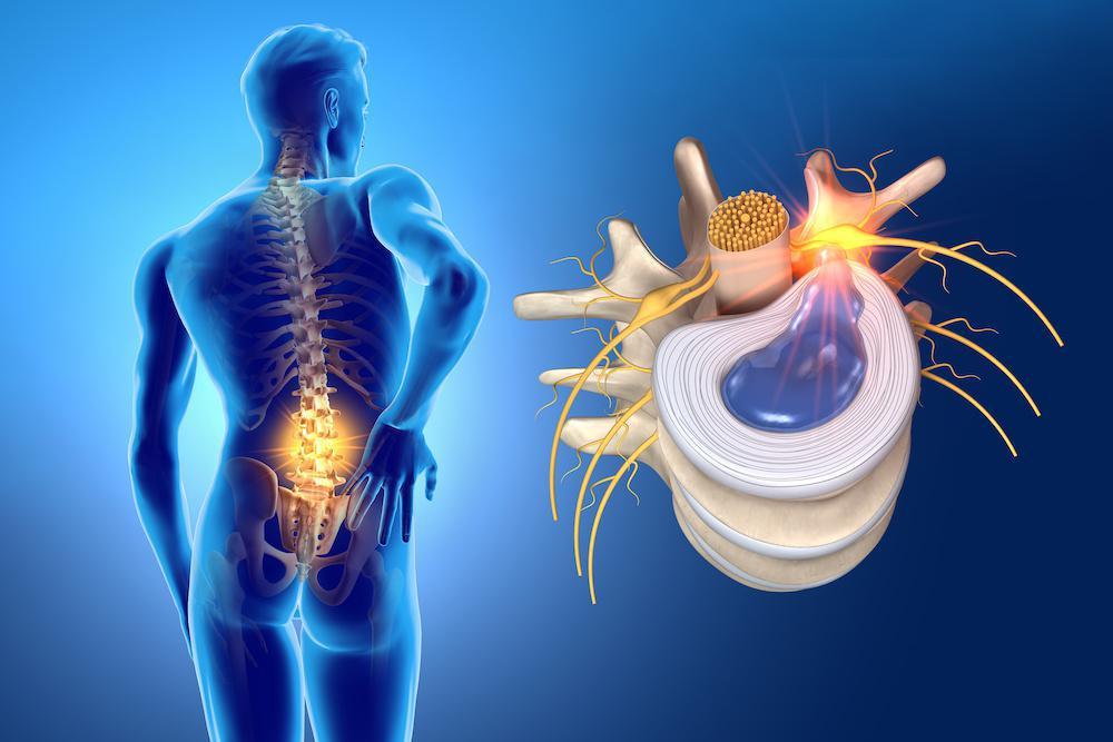 Hernias discales: tipos, síntomas y diagnóstico