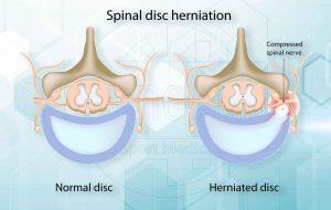 Las hernias discales ocurren con mayor frecuencia en los hombres de mediana edad y de edad avanzada