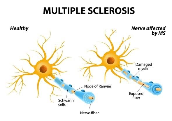 En la esclerosis múltiple el sistema inmunitario ataca por error la mielina de las células nerviosas o neuronas