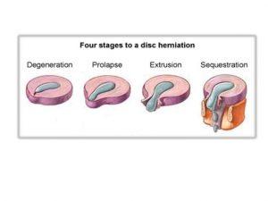 Hay tres tipos de hernia: protruida, extrusión o secuestrada
