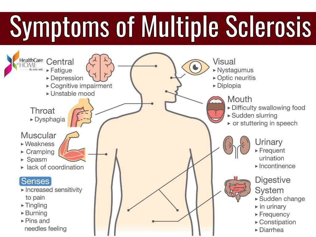 La esclerosis múltiple se conoce como la enfermedad de las mil caras por la variedad de síntomas