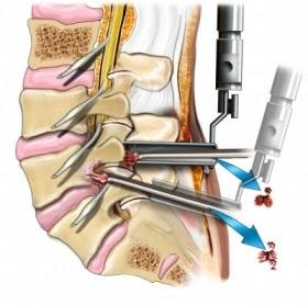 Una discectomía es una cirugía en la que se extirpa un disco vertebral o parte de él