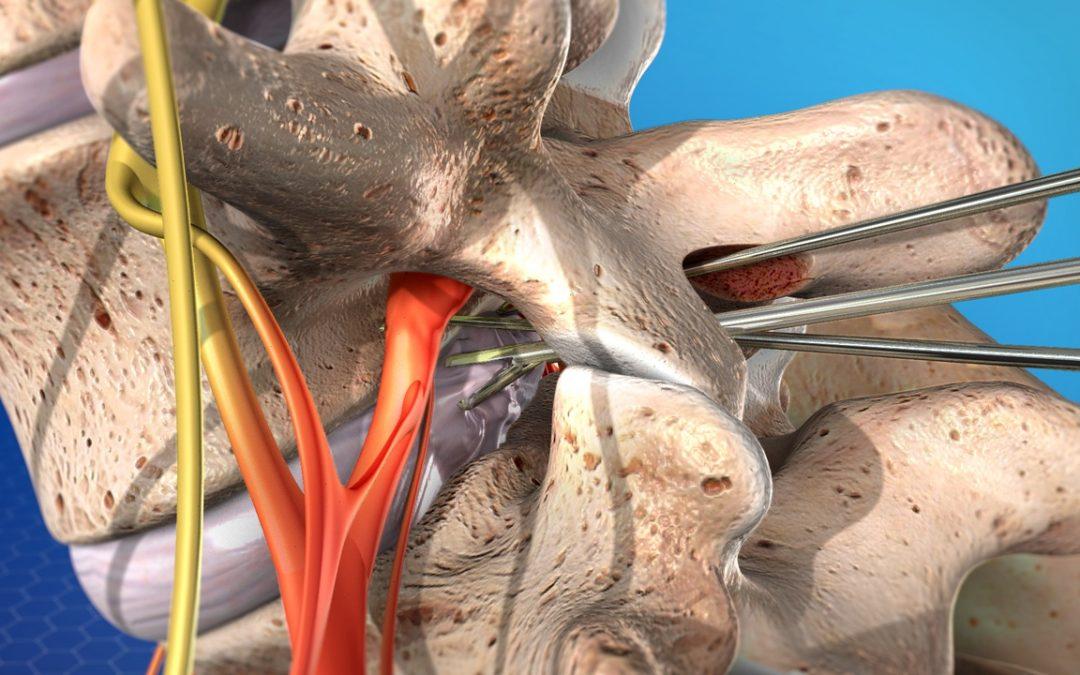 Cirugías de columna: la microdiscectomía