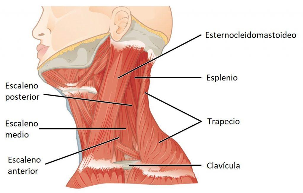 Una contractura es una contracción involuntaria, duradera o permanente, de uno o más grupos musculares.