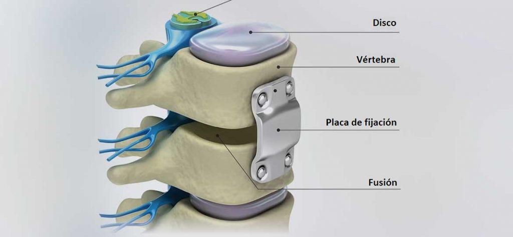 La fusión espinal alivia los síntomas de patologías de espalda como la estenosis espinal o en casos en los que hay un tumor o una vértebra fracturada