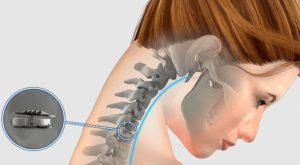 la implantación de disco artificial suele utilizarse cuando hay degeneración del disco o hernias discales