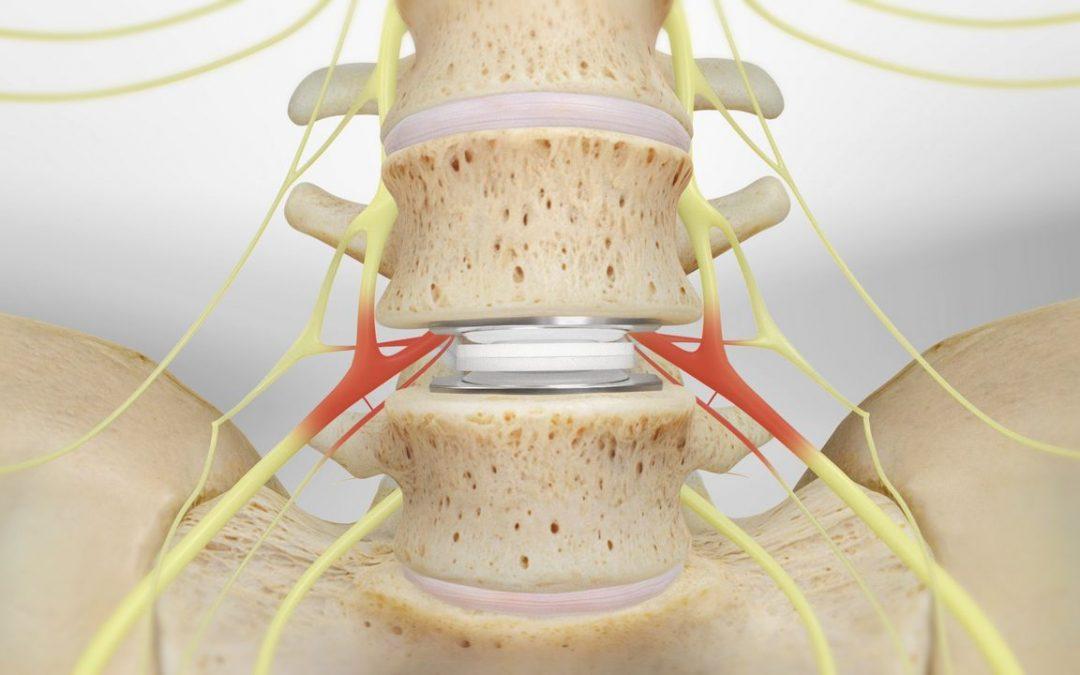 La implantación es una cirugía de columna que consiste en la eliminación del disco afectado