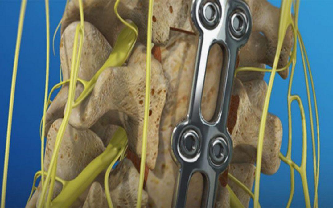 La corporectomía es una técnica quirúrgica que se utiliza en neurocirugía para extraer un cuerpo vertebral