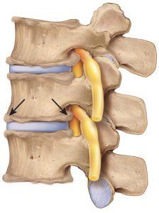 El tratamiento de la artrosis incluye terapias físicas, fármacos y cirugía
