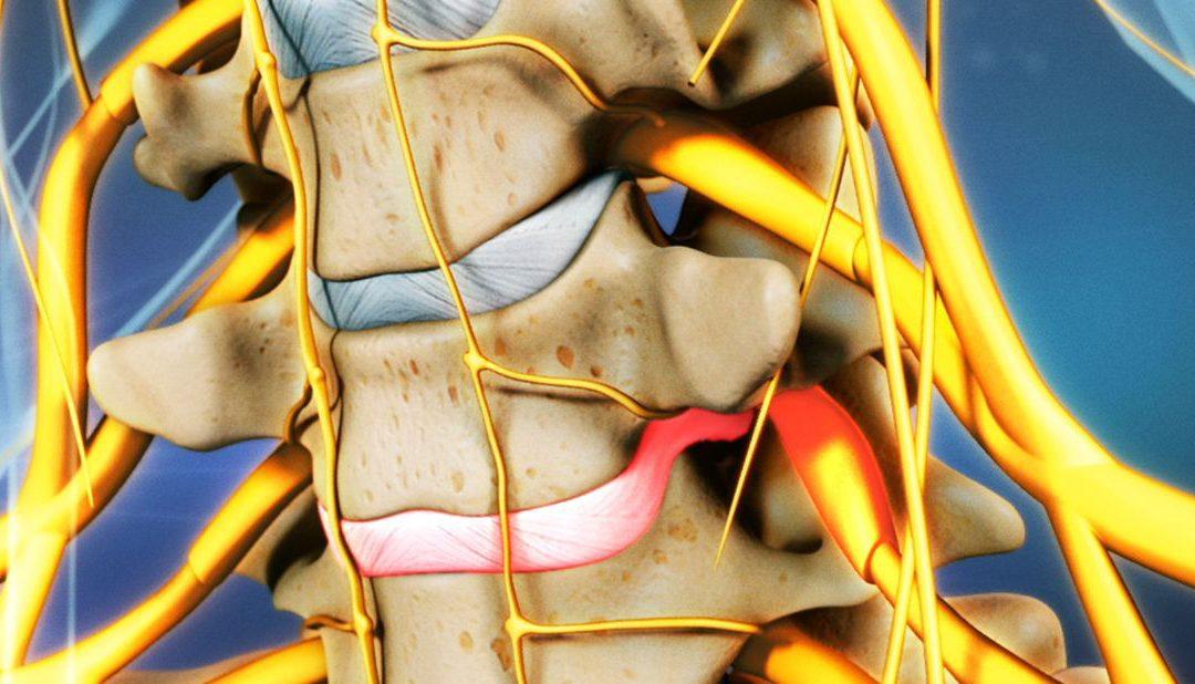 La hernia discal cervical es una patología que afecta a la zona del cuello de la columna vertebral