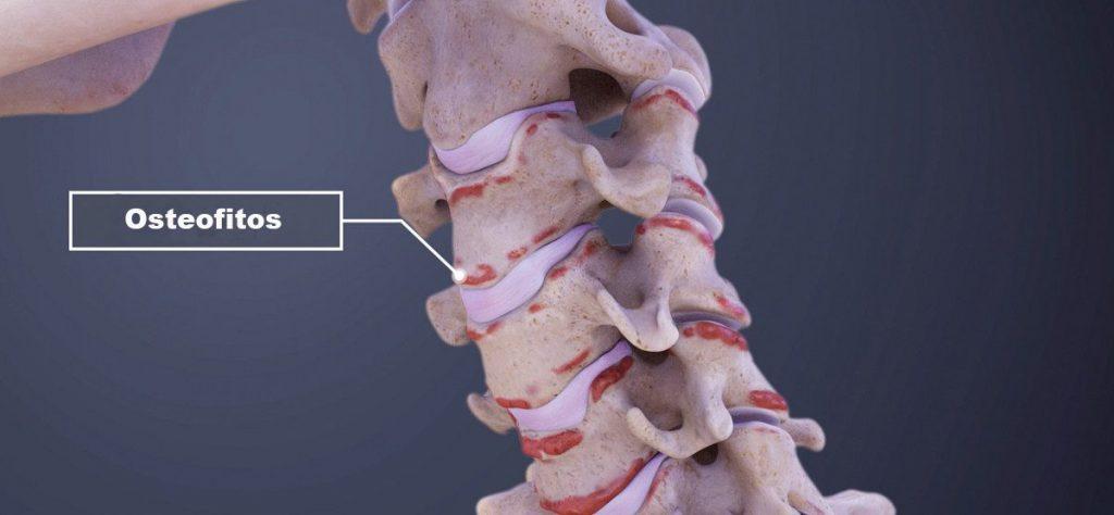 Los osteofitos son proliferaciones óseas que se producen en las articulaciones o en los huesos de la columna vertebral