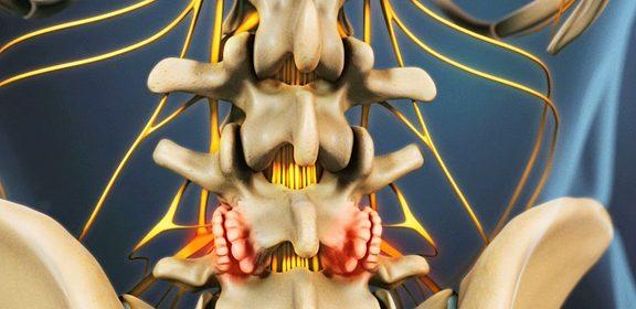 Los osteofitos no suelen causar síntomas y no se suelen detectar