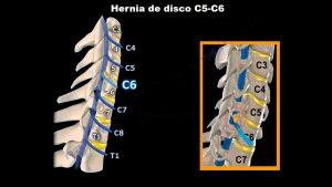 Hernia discal cervical entre C5 y C6, afecta a la raíz del nervio C6