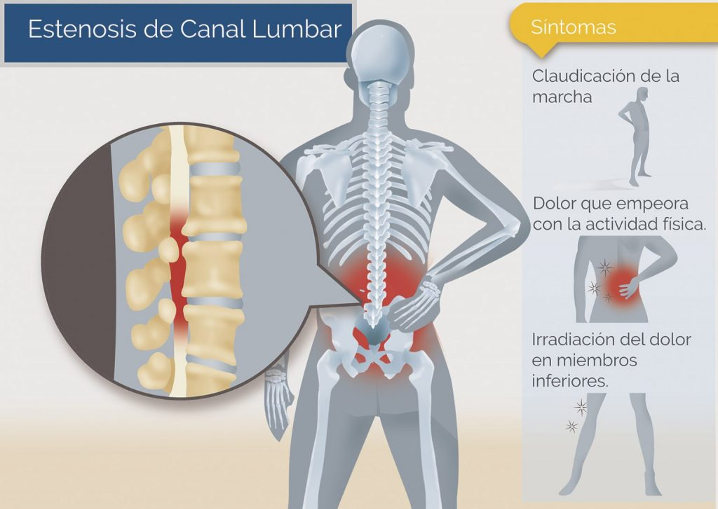síntomas de la estenosis de canal lumbar