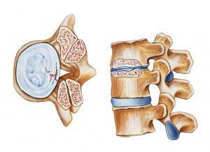 La estenosis de canal lumbar puede ser congénita o adquirida.