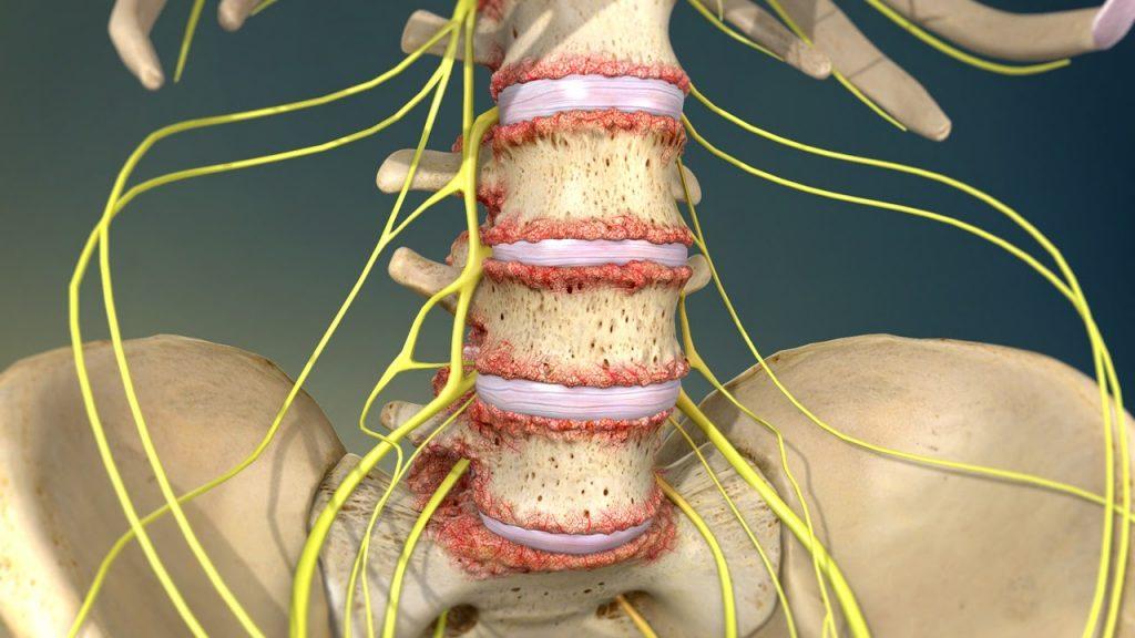 Para prevenir la lumbalgia hay que seguir las normas de higiene postural