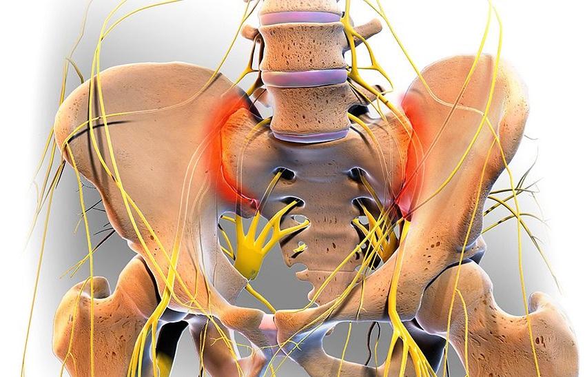 La sacroilitis es una patología que hace referencia a la inflamación de la articulación sacroilíaca