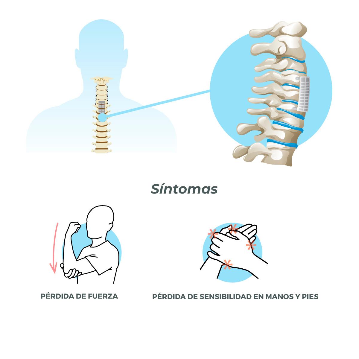 Corporectomía cervical anterior neurocirugia equipo de la torre