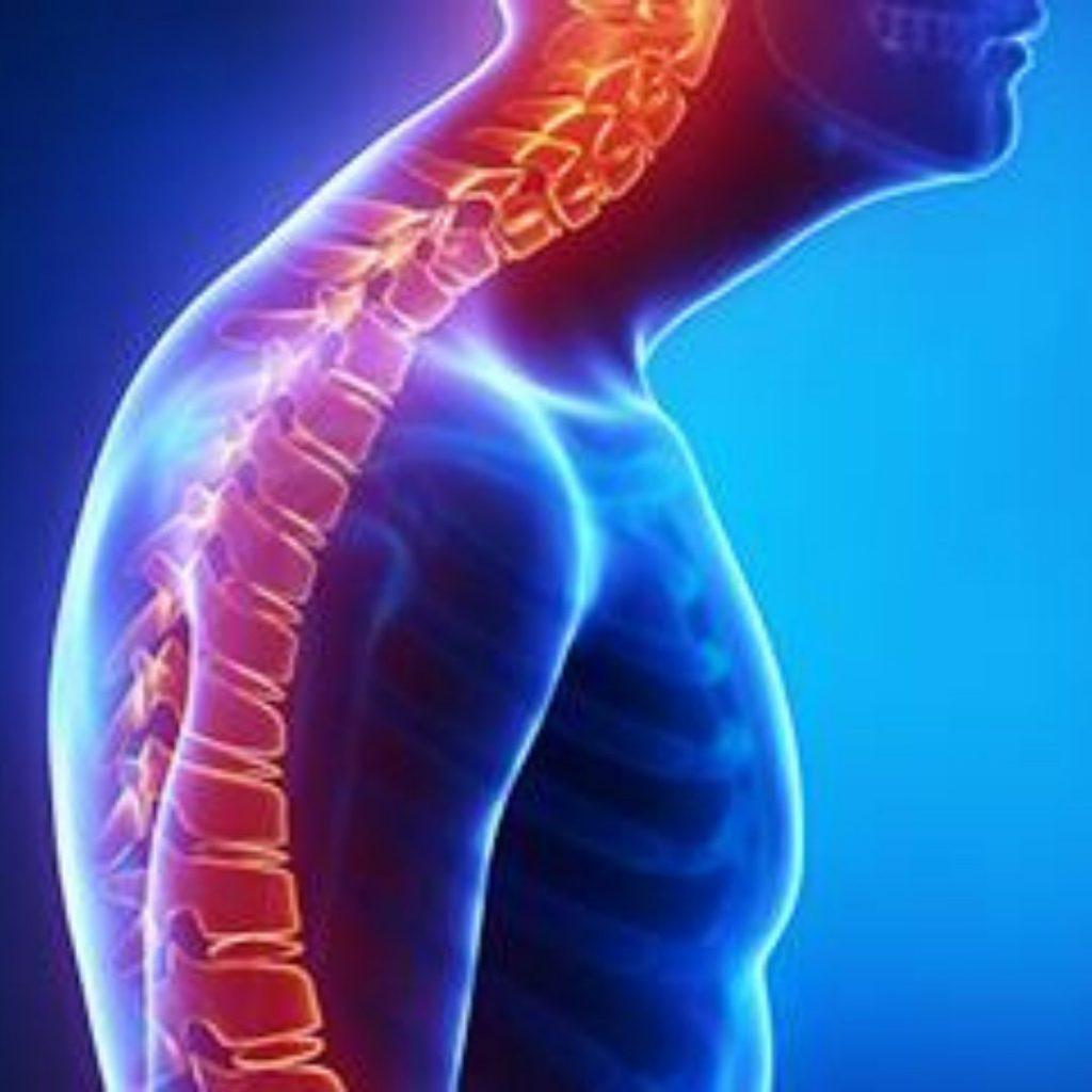 La cifosis es la acentuación en la curvatura de la mitad superior de la espalda.