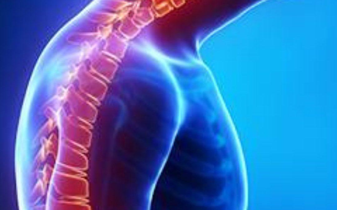 Curvatura de la espalda: ¿Qué es la cifosis dorsal?