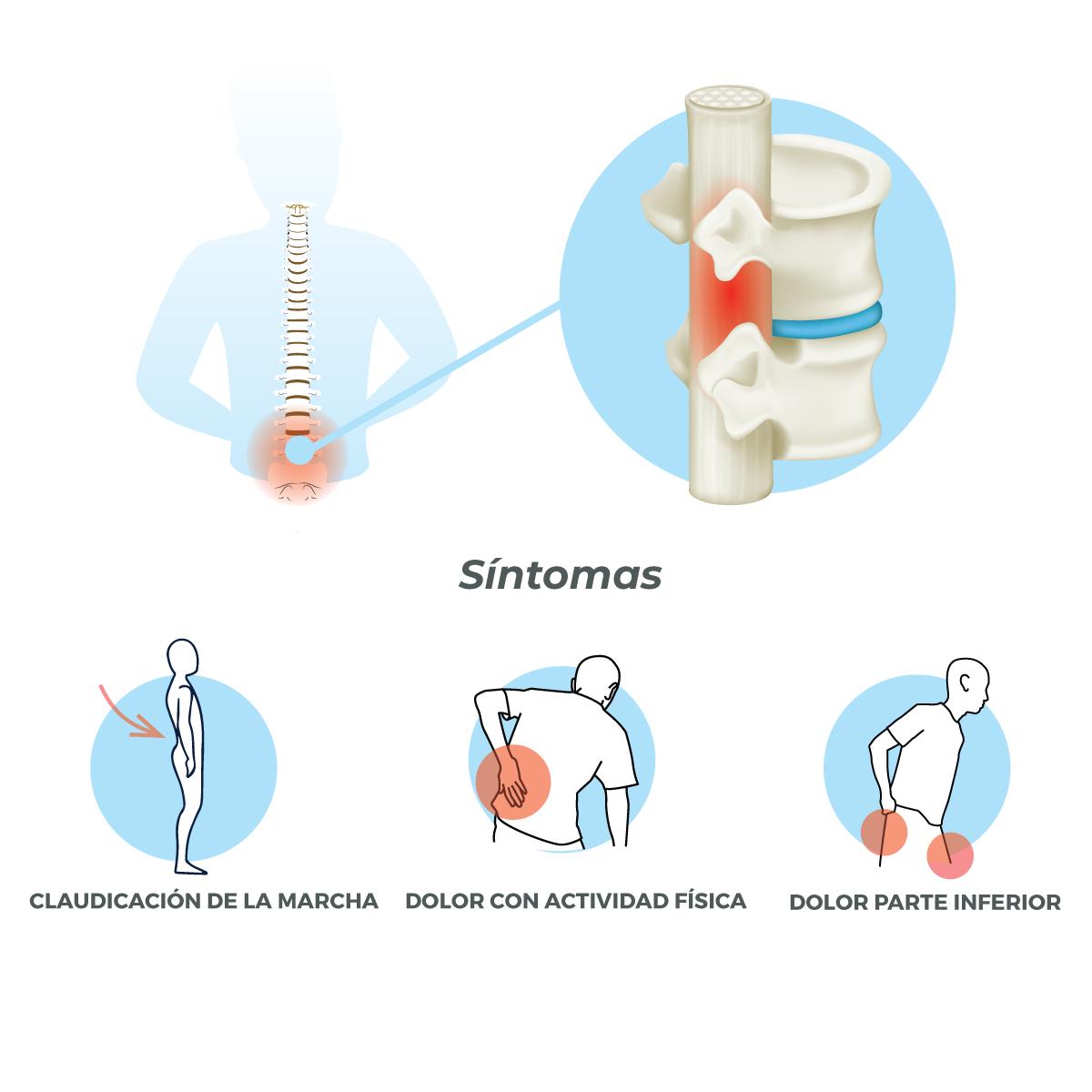 Estenosis canal lumbar equipo de la torre neurocirugia