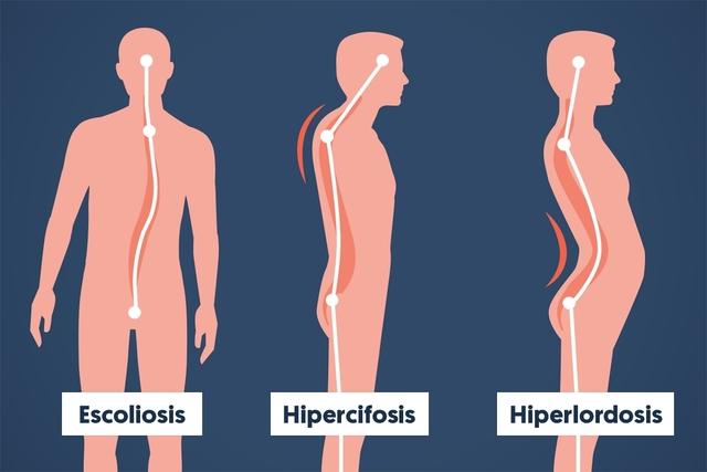 Hiperlordosis, causas y síntomas